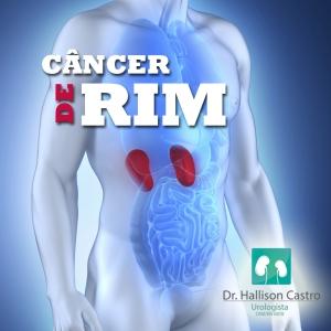 Urologista Hallison Castro comenta sobre câncer de rim