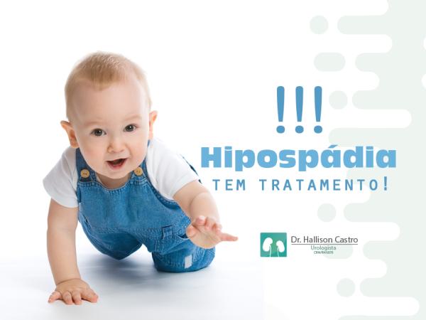 Dr_Hallison_Castro_-_Hipospádia_tem_tratamento (1)